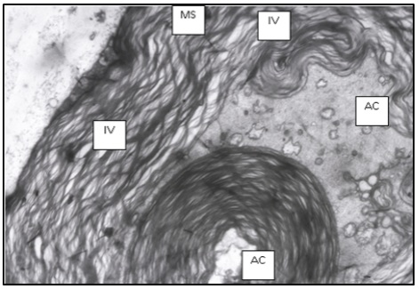 Formation of the small intramyelin vacuoles (IV), disruption of mitochondria architecture and formation of multivacuolar structures in axoplasm on the 1st day of experiment. Electron micrograph. Magnification: х9600. Designation: MS – myelin sheath, AC – axial cylinder.