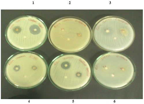 Zone of inhibition formed by stem extracts of Caralluma fimbriata stem against bacterial strains