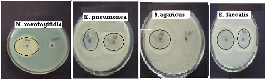 Secondary screening of antibacterial activity of eight Marine sponges against the various CSF influenced Bacterial Pathogens
