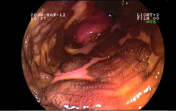 Endoscopic picture of Barrett's esophagus.