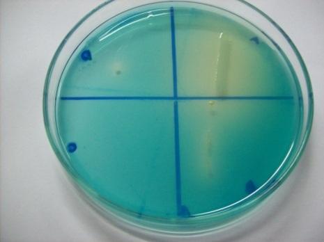 Plate assay for malachite green decolourization